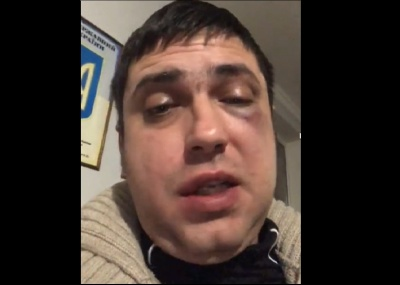 У Чернівцях невідомі побили чоловіка. Постраждалий каже, що поліція відпустила зловмисників