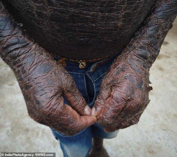 Человек-змея: из-за редкого заболевания кожа десятилетнего мальчика напоминает чешую. ВИДЕО